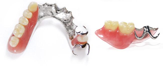 denture01